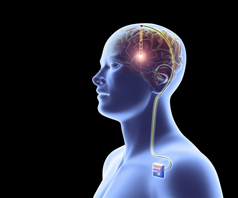cognitive enhancers with the memory tests