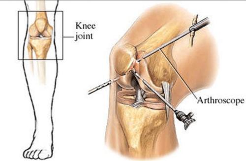 arthroscopic knee surgery fresno ca